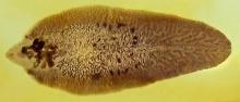 Slide of Fasciola hepatica (liver fluke worm), from teaching slides at the University of Edinburgh.
